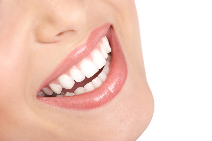 teeth whitening burbank
